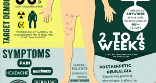 Painful Truth About Shingles